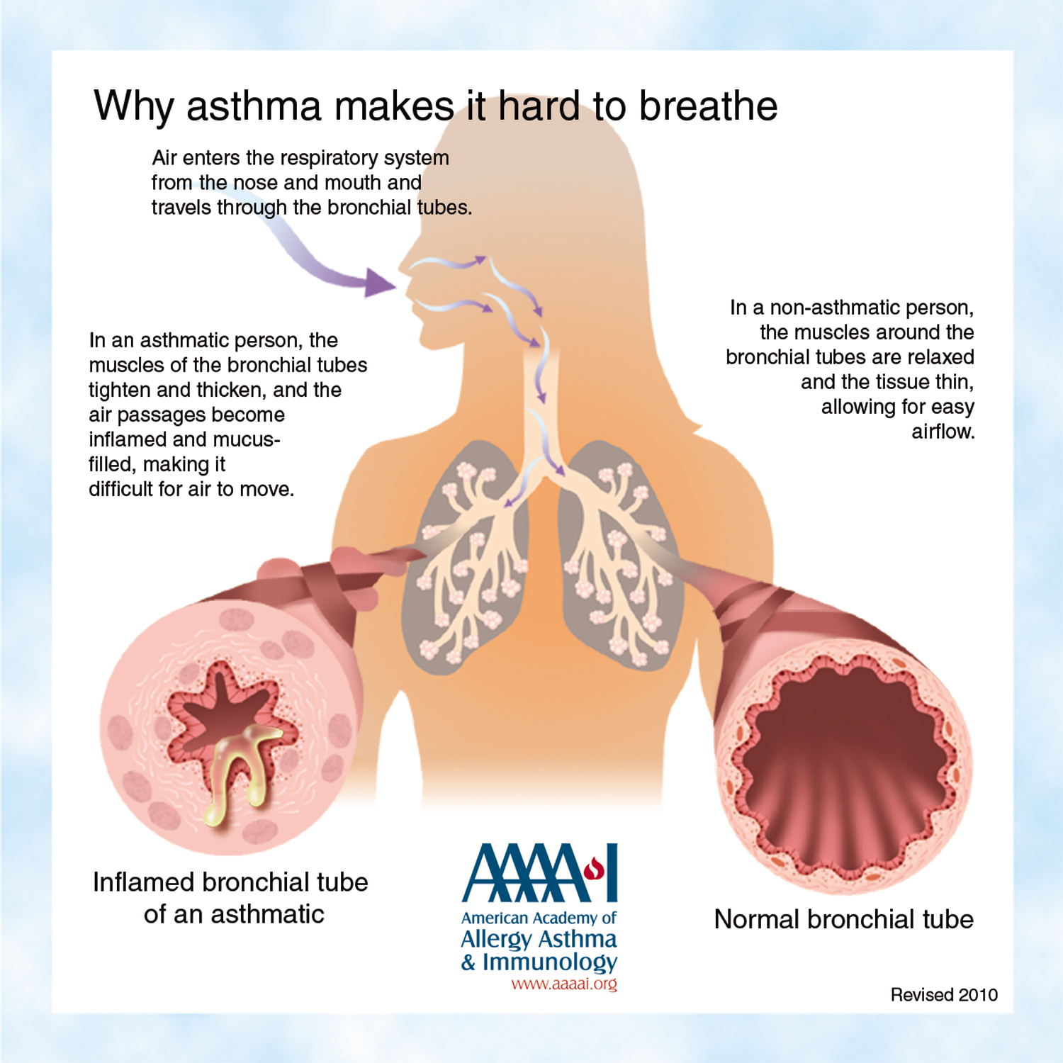 how to use able asthma humidifier