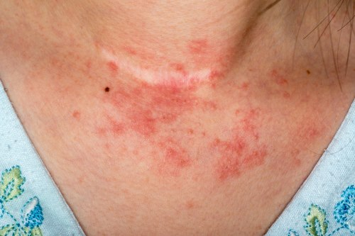 Contact Dermatitis | Symptoms, Treatment & Management