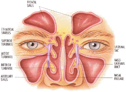 sinuses sinusitis rhinosinusitis defined aaaai : sinus cavity diagram - findchart.co