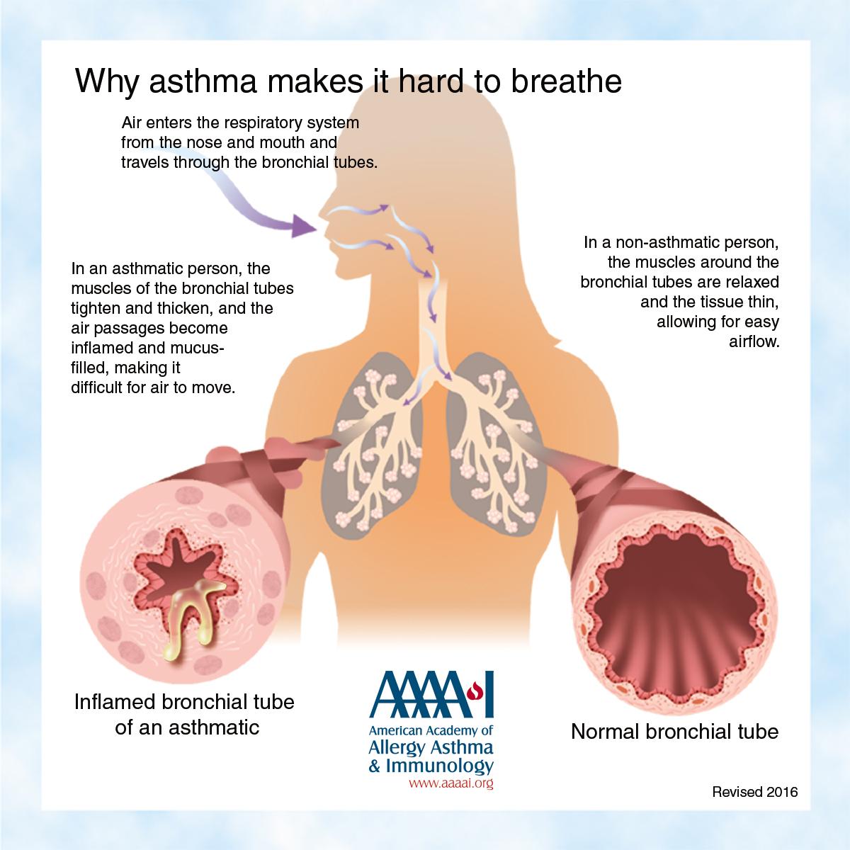 Asthma Library | AAAAI
